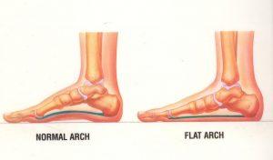 flat feet or pronation cannington